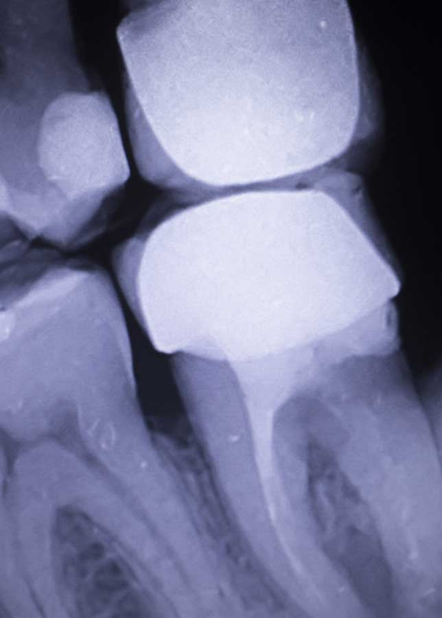 tooth-filling-dental-xray